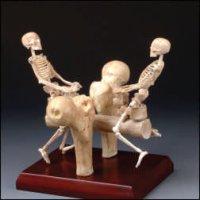 skeleton-seesaw.jpg