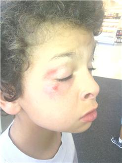 Autistic-Boy-Assaulted-at-School-CopBlock