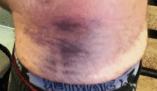 Bruising / Wounds