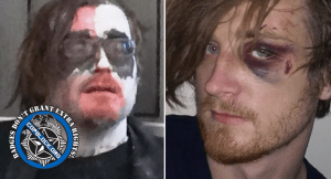 Forest Thomer Arrested (AGAIN) for Protesting as Zombie; Assaulted While in Jail