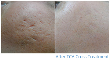 tca-cross-before-and-after3