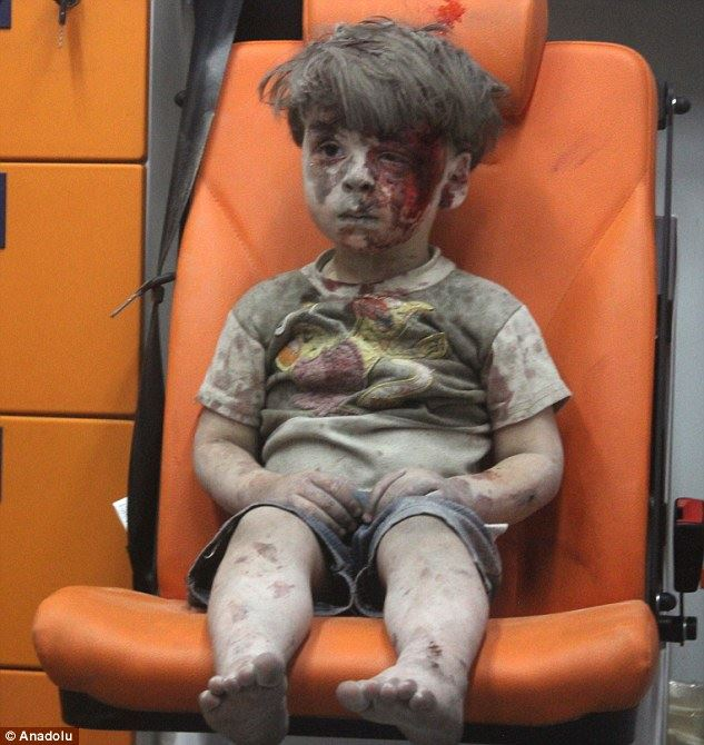 Aleppo boy's brother dies as a result of the same airstrike