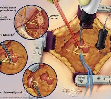 Pudendal Nerve Entrapment Surgery