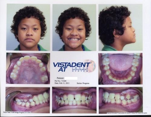 orthodontic treatment changes smiles