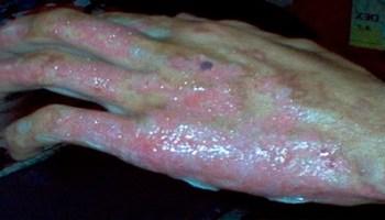 Cuáles son los síntomas de una quemadura de piel? | Curación de Heridas