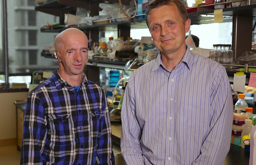 UC Berkeley research spurs hope for those with bone deformities
