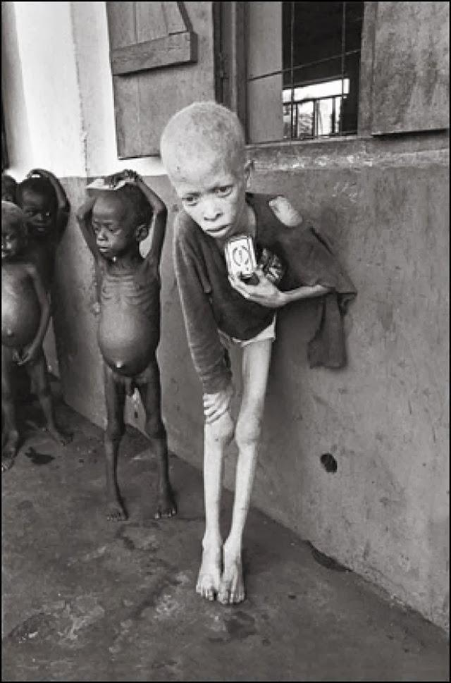 Taken by Don McCullin. It was in Biafra, almost more than 3 years of war have ruined the lives of more than a million people . He was petrified in seeing the scene of more than 900 children living in a camp almost close to a point of death.