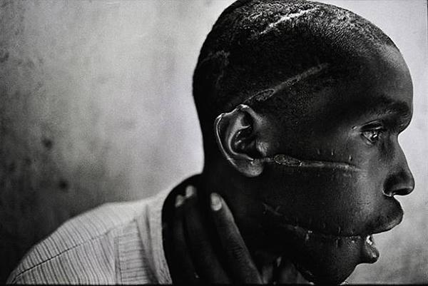 Taken by James Natcheway. This Picture tells the genocide which took place in rwanda. This Hutu man was in one of those concentration camps who was brutally tortured. He then managed to survive once freed.