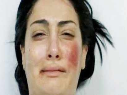 "A Snapshot of Farida's face after being beaten up by her husband Monir on ""Maa Sabq el-Israr"" soap opera of Ramadan 2012  (Photo from MBC.net )"