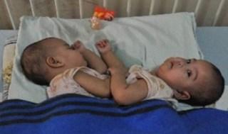 Bayi kembar siam. Ilustrasi (Republika)