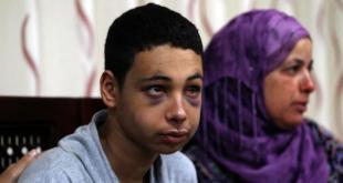 Anak Palestina korban penyiksaan Zionis Israel.  (knrp.org)