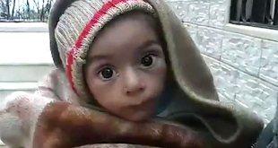 Anak-anal Madaya korban blokade. (muslimvillage.com)