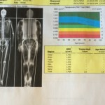 What Does 20 Pounds of Muscle Look Like on a DEXA Scan?