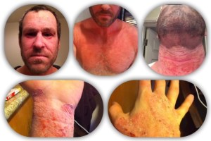Red Skin Syndrome eczema full body