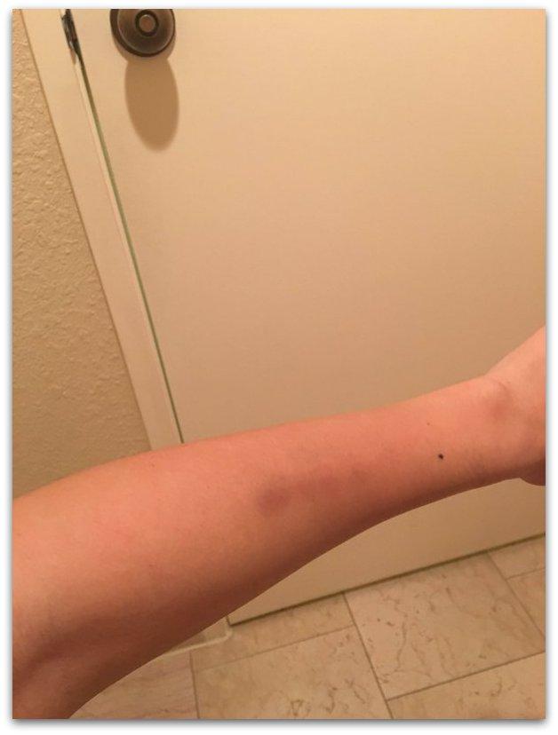 Michelle Fields bruise