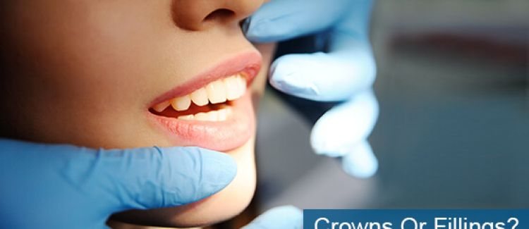 Crowns Or Fillings: Which Are Best For You?