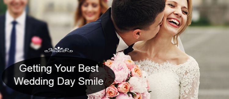 How To Make Your Smile Better For Your Big Day?