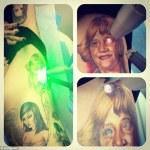 kat-vod-d-tattoo-removal