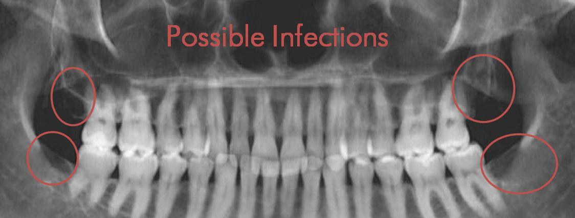 Dental-Cavitation