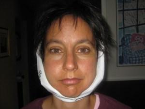 dental-cavitation-surgery