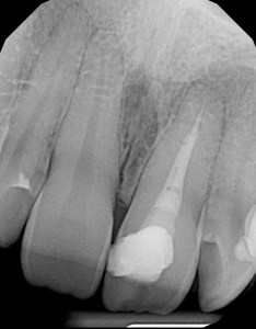 Root-Canal-Infection