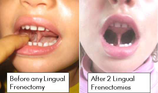 Lingual-Frenectomy-Before-After