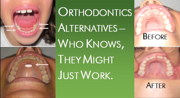Orthodontics Alternatives and Cranial Structure