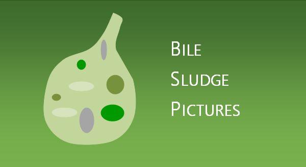 Bile Sludge Pictures