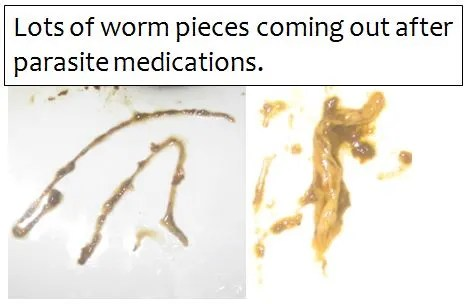 Human Parasite Pictures Debug Your Health