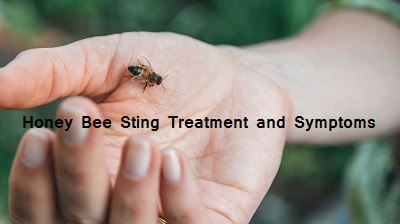 Honey bee sting treatment