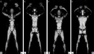TSA millimeter wave radar scan image