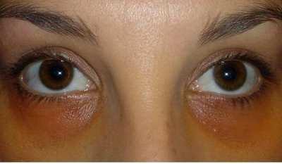 Elimina tus ojeras con la micropigmentación