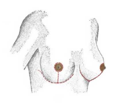Roturas de prótesis mamarias