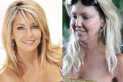 Famosas al desnudo, Heather Locklear demacrada
