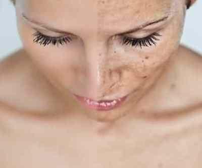 ¿Qué hacer con las manchas en la piel?