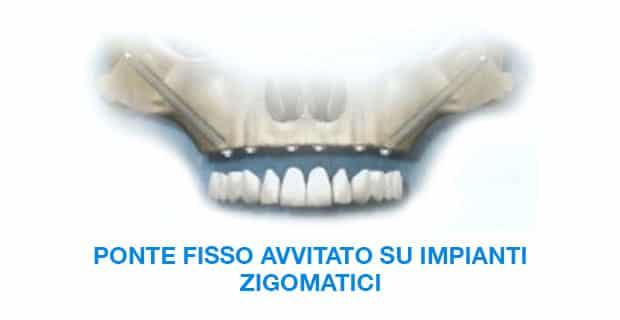 PONTE-FISSO-AVVITATO-SU-IMPIANTI-ZIGOMATICI