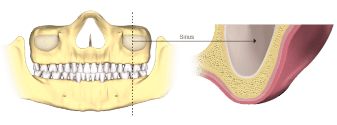 bone-loss-sinus (1)