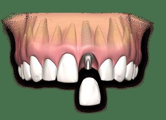 dental-implant-single
