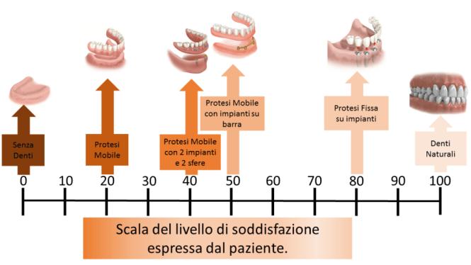 implantologia scala soddisfazione