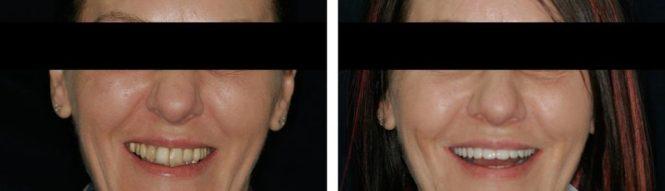 implantologia32
