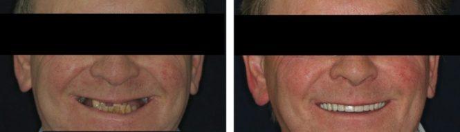 implantologia6