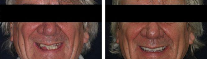 implantologia7