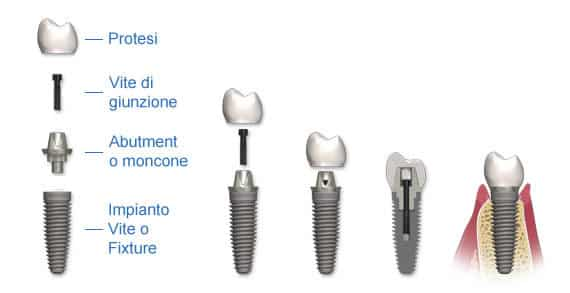 Prezzi Impianti dentali