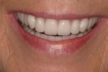 complete denture 2