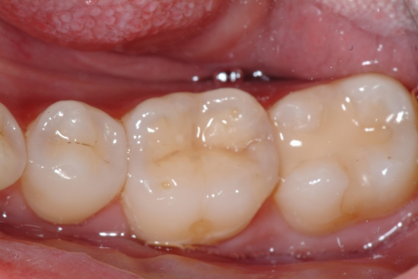 Composite Fillings- The White Fillings