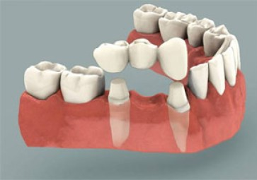 ental bridge fixed partial denture