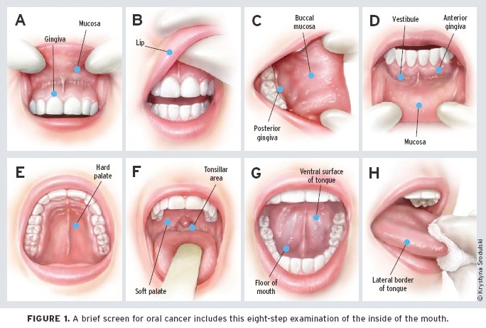 Wonderful Oral Cancer Screening