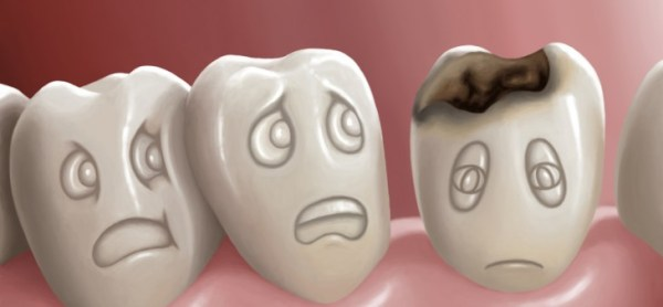 prevention of cavity formation