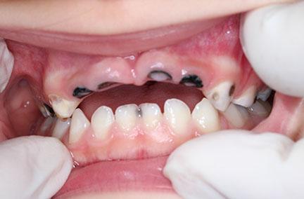 cavities in children