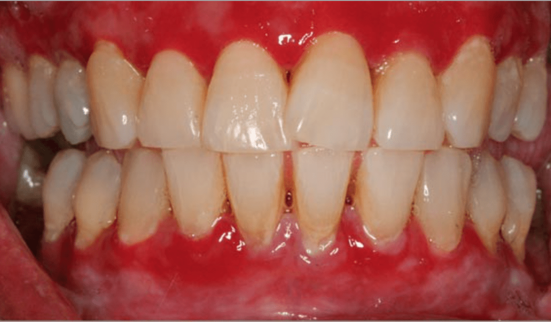 How to Get Rid of Gingivitis ? Is there a cure?